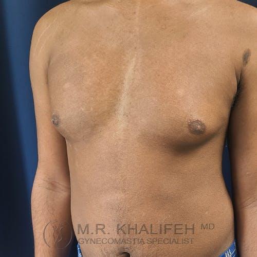 Gynecomastia Gallery - Patient 28762698 - Image 7