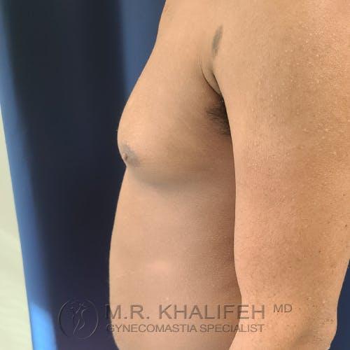 Gynecomastia Gallery - Patient 28762698 - Image 9