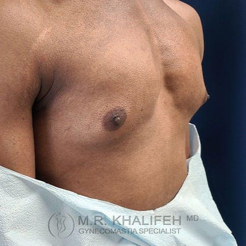 Gynecomastia Gallery - Patient 39762788 - Image 3