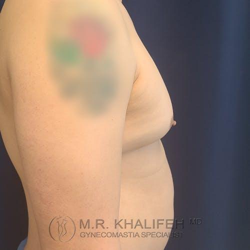Gynecomastia Gallery - Patient 39763874 - Image 5