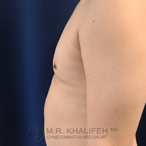 Gynecomastia Gallery - Patient 39763874 - Image 10