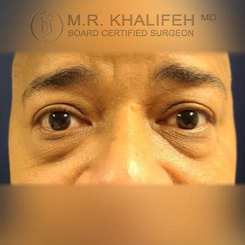 Eyelid Surgery  Gallery - Patient 39766043 - Image 1