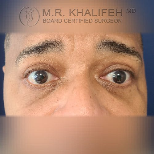 Eyelid Surgery  Gallery - Patient 39766043 - Image 2