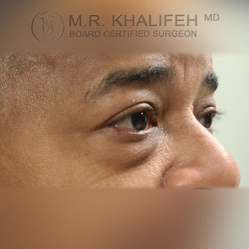 Eyelid Surgery  Gallery - Patient 39766043 - Image 3