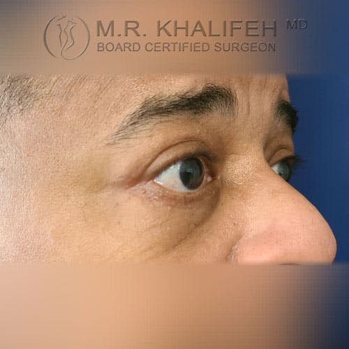 Eyelid Surgery  Gallery - Patient 39766043 - Image 4