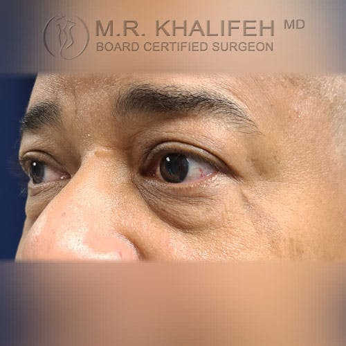 Eyelid Surgery  Gallery - Patient 39766043 - Image 5