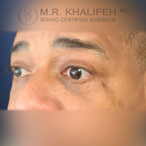 Eyelid Surgery  Gallery - Patient 39766043 - Image 6