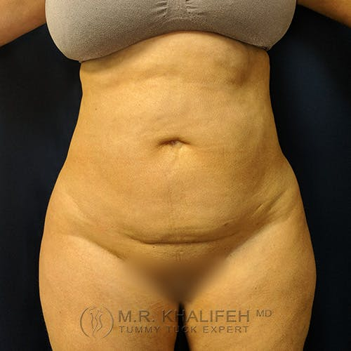 Tummy Tuck Gallery - Patient 39769207 - Image 1
