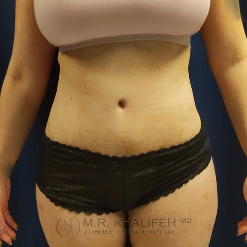 Tummy Tuck Gallery - Patient 39769207 - Image 2