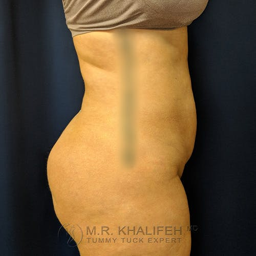 Tummy Tuck Gallery - Patient 39769207 - Image 3