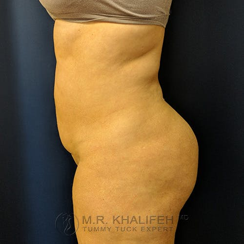 Tummy Tuck Gallery - Patient 39769207 - Image 6