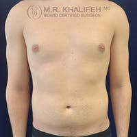 Abdominal Liposuction Gallery - Patient 39769308 - Image 1