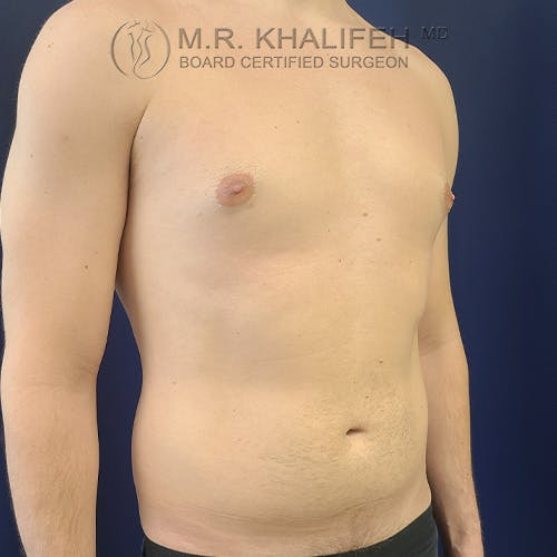 Abdominal Liposuction Gallery - Patient 39769308 - Image 3
