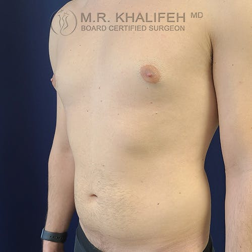 Abdominal Liposuction Gallery - Patient 39769308 - Image 7