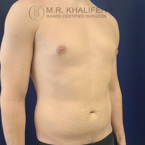 Gynecomastia Gallery - Patient 39769327 - Image 3