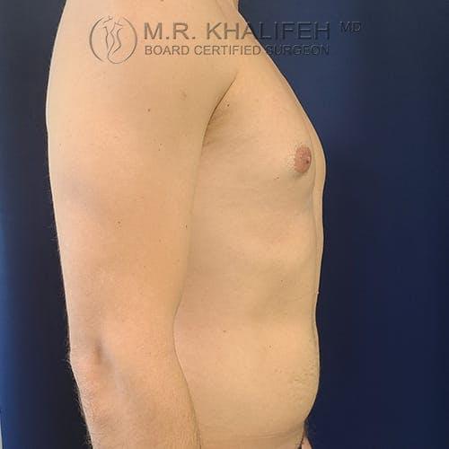 Gynecomastia Gallery - Patient 39769327 - Image 5