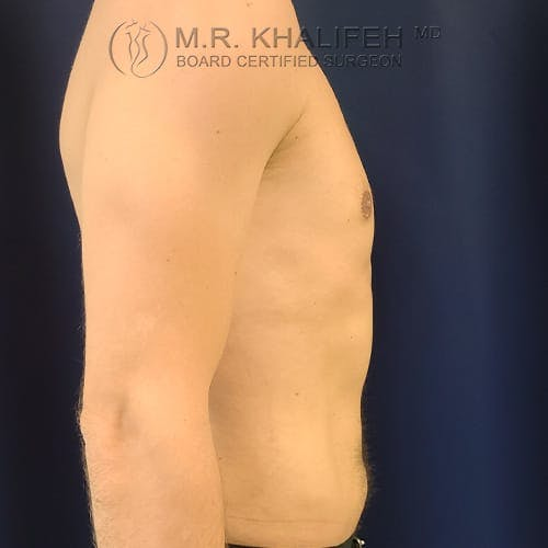 Gynecomastia Gallery - Patient 39769327 - Image 6