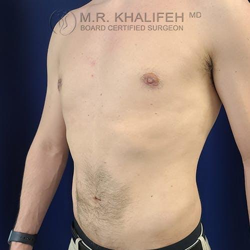 Gynecomastia Gallery - Patient 39769327 - Image 8