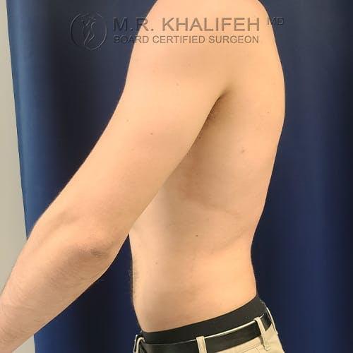 Gynecomastia Gallery - Patient 39769327 - Image 10