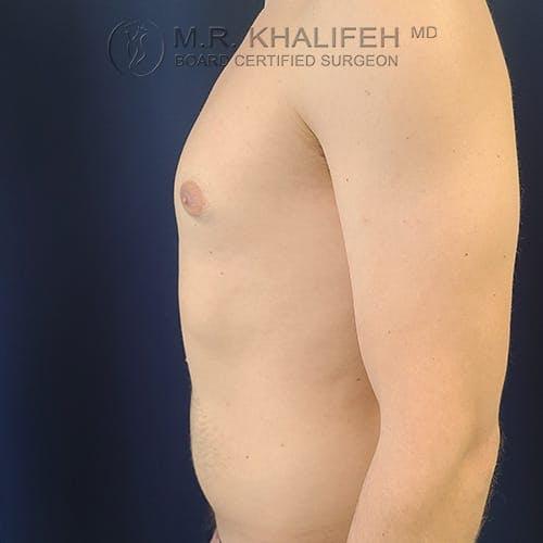 Gynecomastia Gallery - Patient 39769327 - Image 9