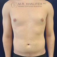 Male Liposuction Gallery - Patient 39769363 - Image 1