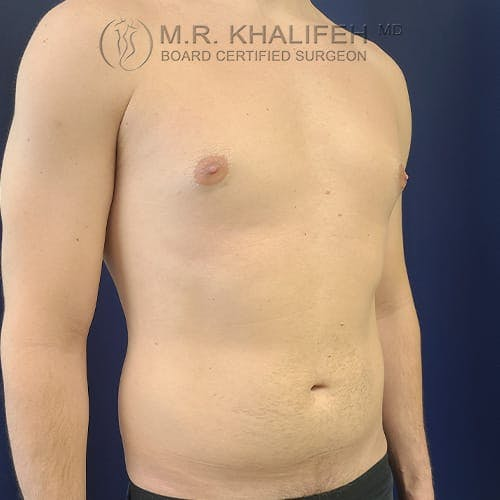 Male Liposuction Gallery - Patient 39769363 - Image 3