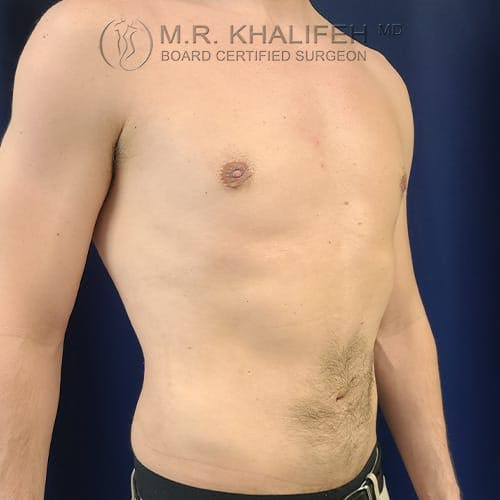 Male Liposuction Gallery - Patient 39769363 - Image 4
