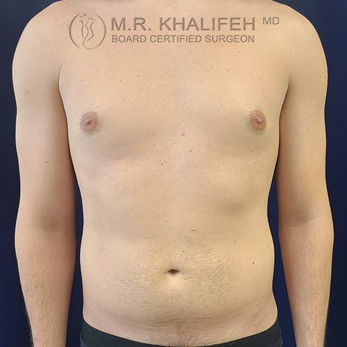Flank-Lower Back Liposuction Gallery - Patient 39769386 - Image 3