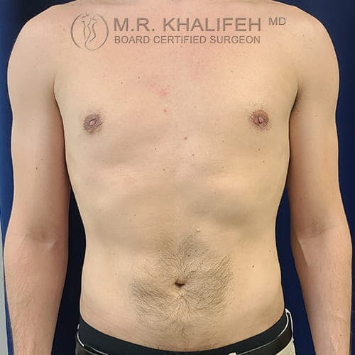 Flank-Lower Back Liposuction Gallery - Patient 39769386 - Image 4