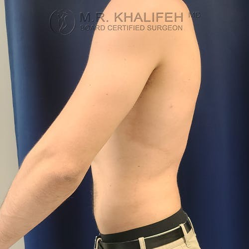 Flank-Lower Back Liposuction Gallery - Patient 39769386 - Image 12
