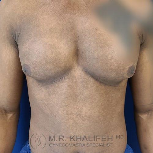 Gynecomastia Gallery - Patient 39769434 - Image 1