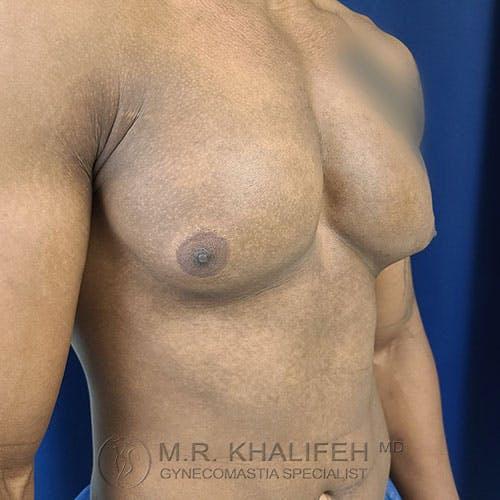 Gynecomastia Gallery - Patient 39769434 - Image 3