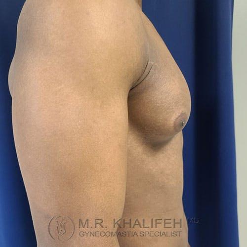 Gynecomastia Gallery - Patient 39769434 - Image 5