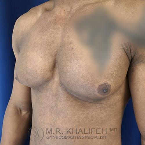 Gynecomastia Gallery - Patient 39769434 - Image 7