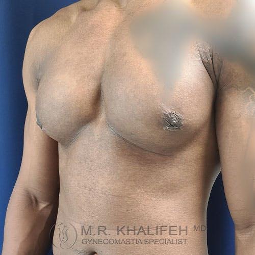Gynecomastia Gallery - Patient 39769434 - Image 8