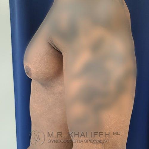 Gynecomastia Gallery - Patient 39769434 - Image 9