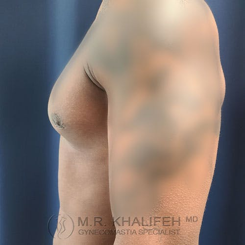 Gynecomastia Gallery - Patient 39769434 - Image 10