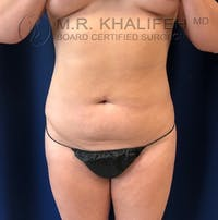 Abdominal Liposuction Gallery - Patient 40623066 - Image 1