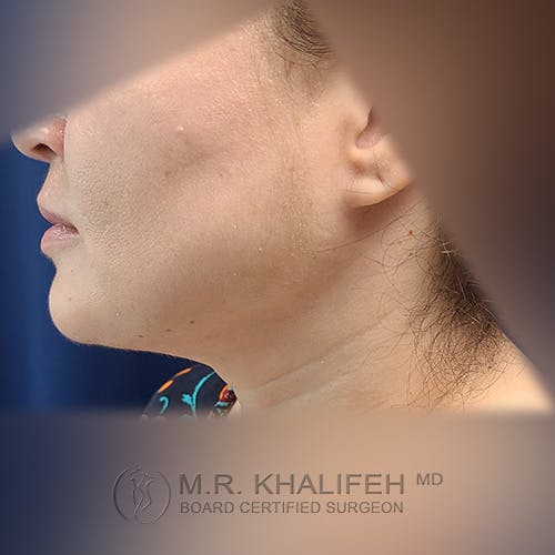 Chin & Neck Liposuction Gallery - Patient 41507668 - Image 2