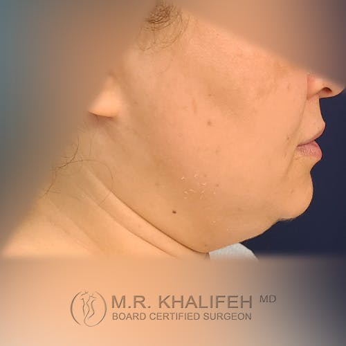 Chin & Neck Liposuction Gallery - Patient 41507668 - Image 3