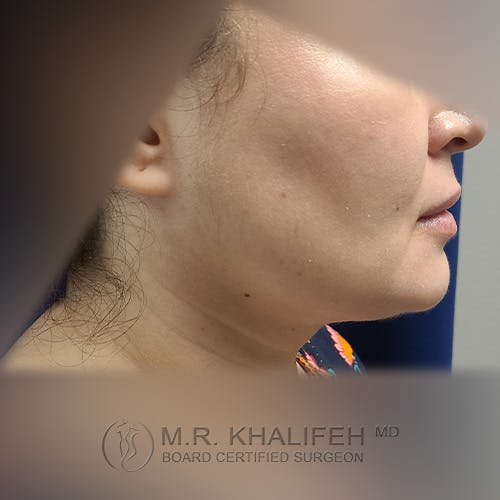 Chin & Neck Liposuction Gallery - Patient 41507668 - Image 4