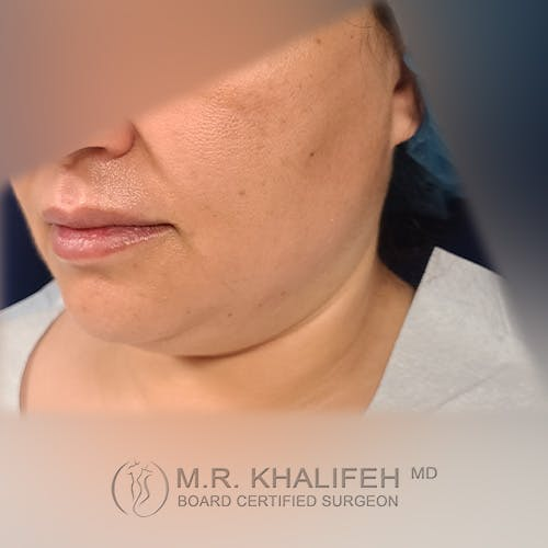 Chin & Neck Liposuction Gallery - Patient 41507668 - Image 5