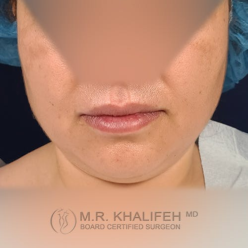 Chin & Neck Liposuction Gallery - Patient 41507668 - Image 9
