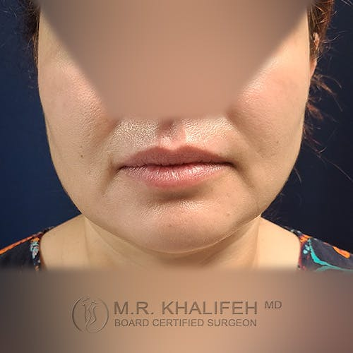 Chin & Neck Liposuction Gallery - Patient 41507668 - Image 10