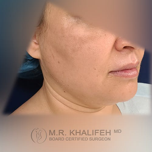 Buccal Fat Pad Excision Gallery - Patient 41507731 - Image 3