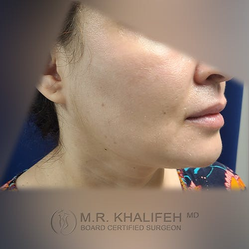 Buccal Fat Pad Excision Gallery - Patient 41507731 - Image 4