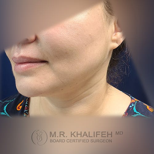 Buccal Fat Pad Excision Gallery - Patient 41507731 - Image 8