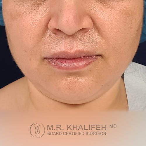 Buccal Fat Pad Excision Gallery - Patient 41507731 - Image 11
