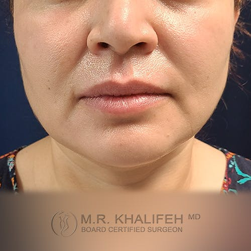 Buccal Fat Pad Excision Gallery - Patient 41507731 - Image 12