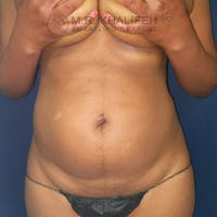 Abdominal Liposuction Gallery - Patient 44540436 - Image 1